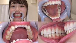 [Tooth fetish] I observed Chiharu Miyazawa's teeth!