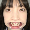 [Tooth/Mouth] Popular actress Winter Love Kotoe-chan with a mouse opener to observe teeth, mouth, mouth, tongue and tongue!