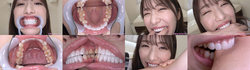 [With bonus video] Haruna Kawakita's teeth and bite series 1-2 together DL