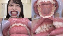 【歯フェチ】弥生みづきちゃんの歯を観察しました!